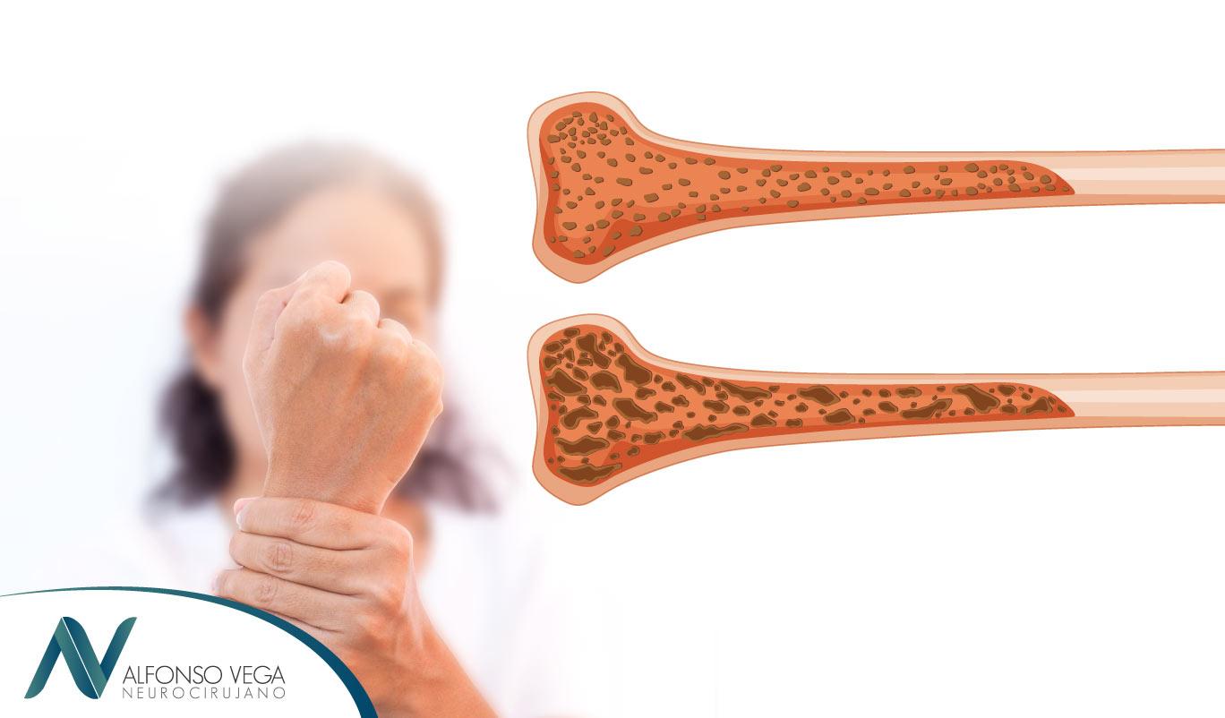24+ Que doctor trata la osteoporosis viral